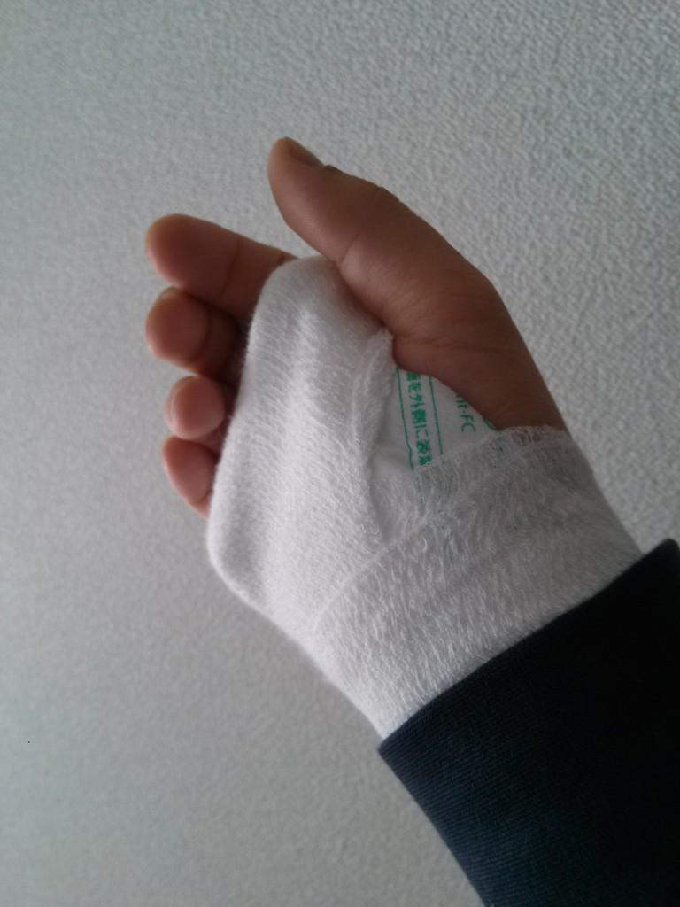手の甲_骨折